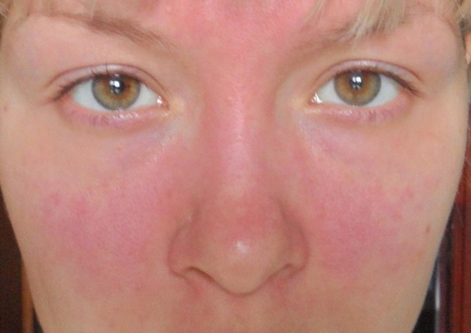 фото проявления аллергии на теле